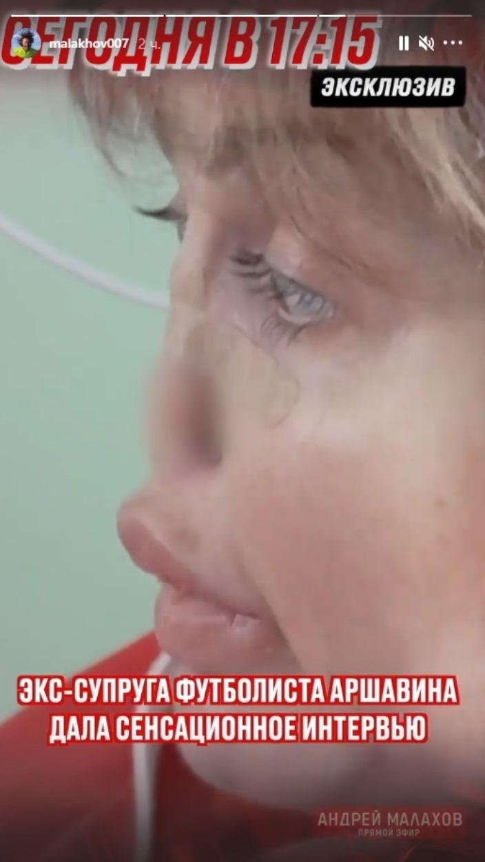Сенсация от Малахова: экс-супруга Аршавина впервые показала лицо без носа